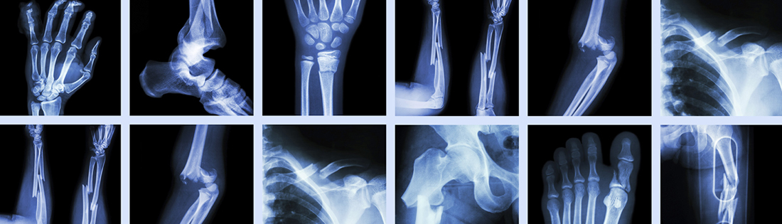 Orthopedic Disorders